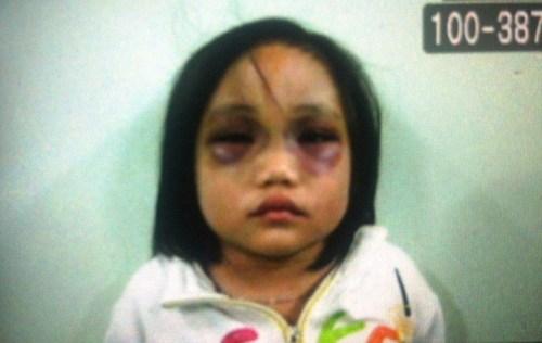 Tại hiện trường bé Dương bị thương nặng