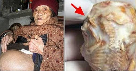 Bà 92 tuổi phát hiện mình đã mang thai từ 50 năm trước