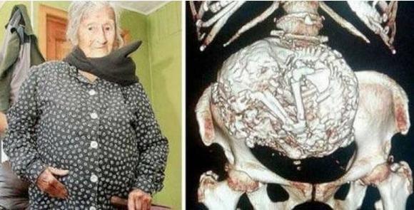 Mọi người đều ngỡ ngàng khi bà mang thai ở tuổi 92