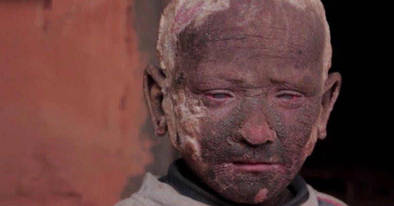 Căn bệnh cứ lớn dần trong cậu bé mỗi ngày