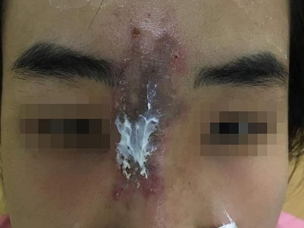 Nữ sinh viên bị hoại tử mũi vì tiêm chất làm đầy giá rẻ