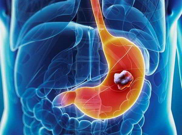 Những điều cần biết về căn bệnh nguy hiểm ung thư dạ dày